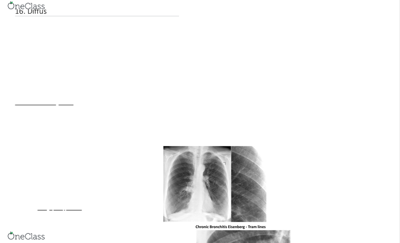 MEDRADSC 2I03 Lecture Notes - Fall 2018, Lecture 16 - Subcutaneous Emphysema,  Chronic Obstructive Pulmonary Disease, Airway Obstruction